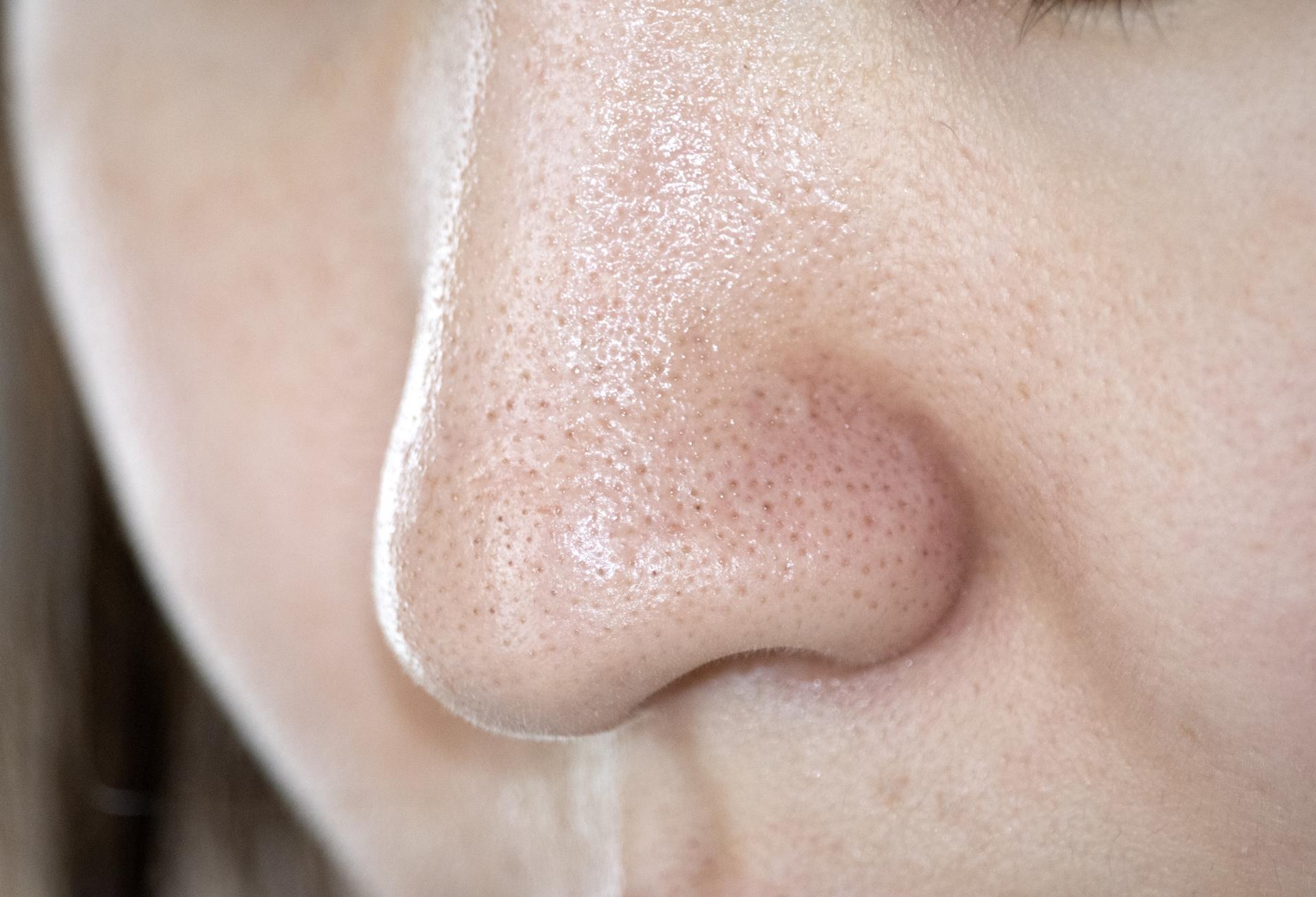 赤い 鼻 の 頭