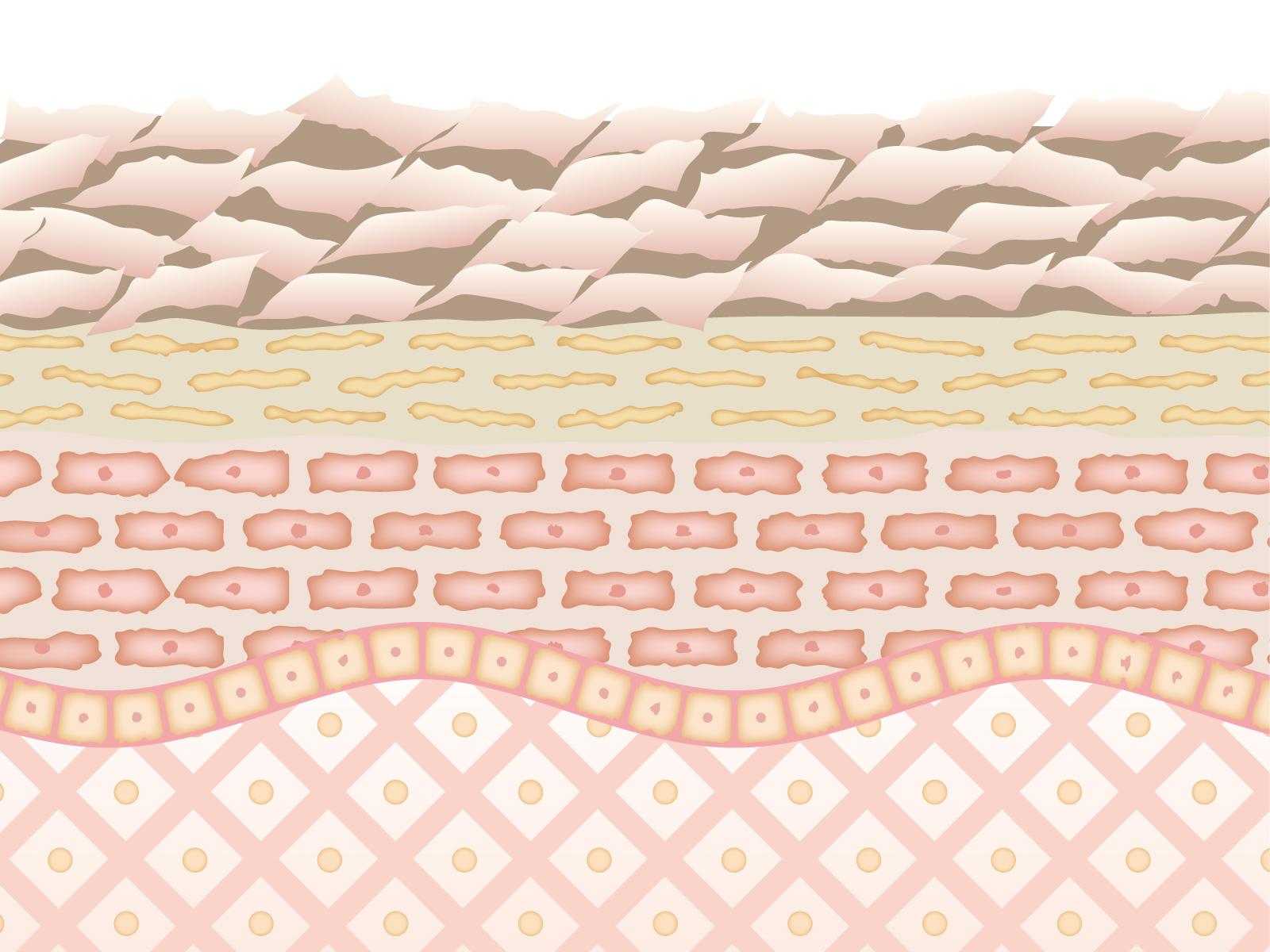 乾燥肌の断面図
