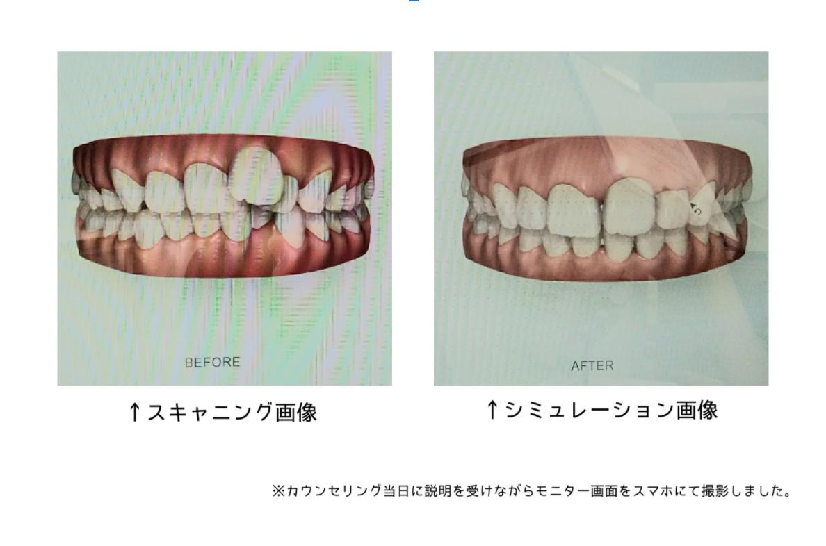 顎の写真のシュミレーション