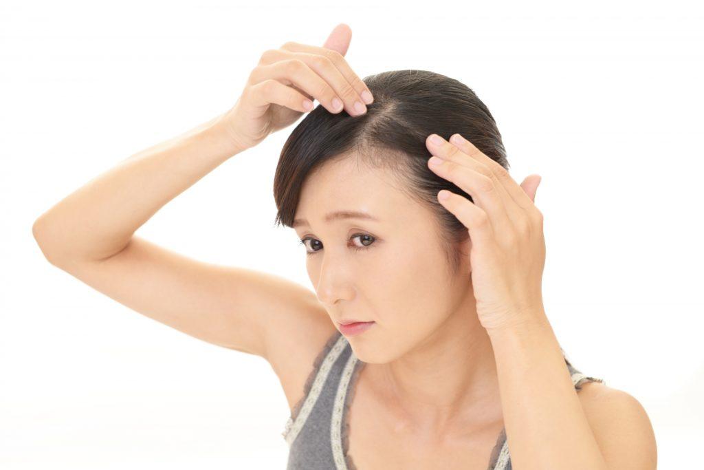 頭皮の乾燥とフケを気にする女性