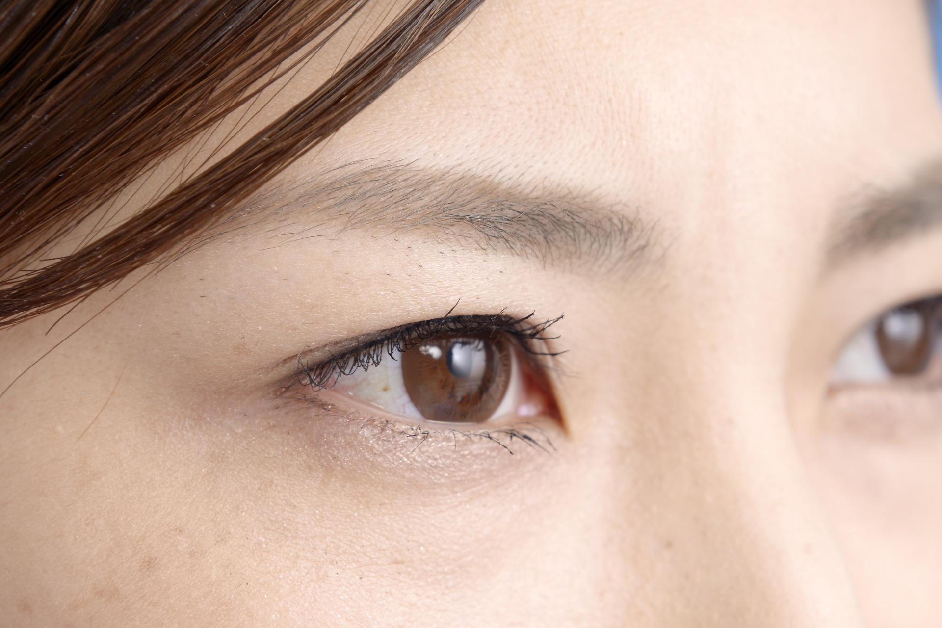 目の周りの乾燥