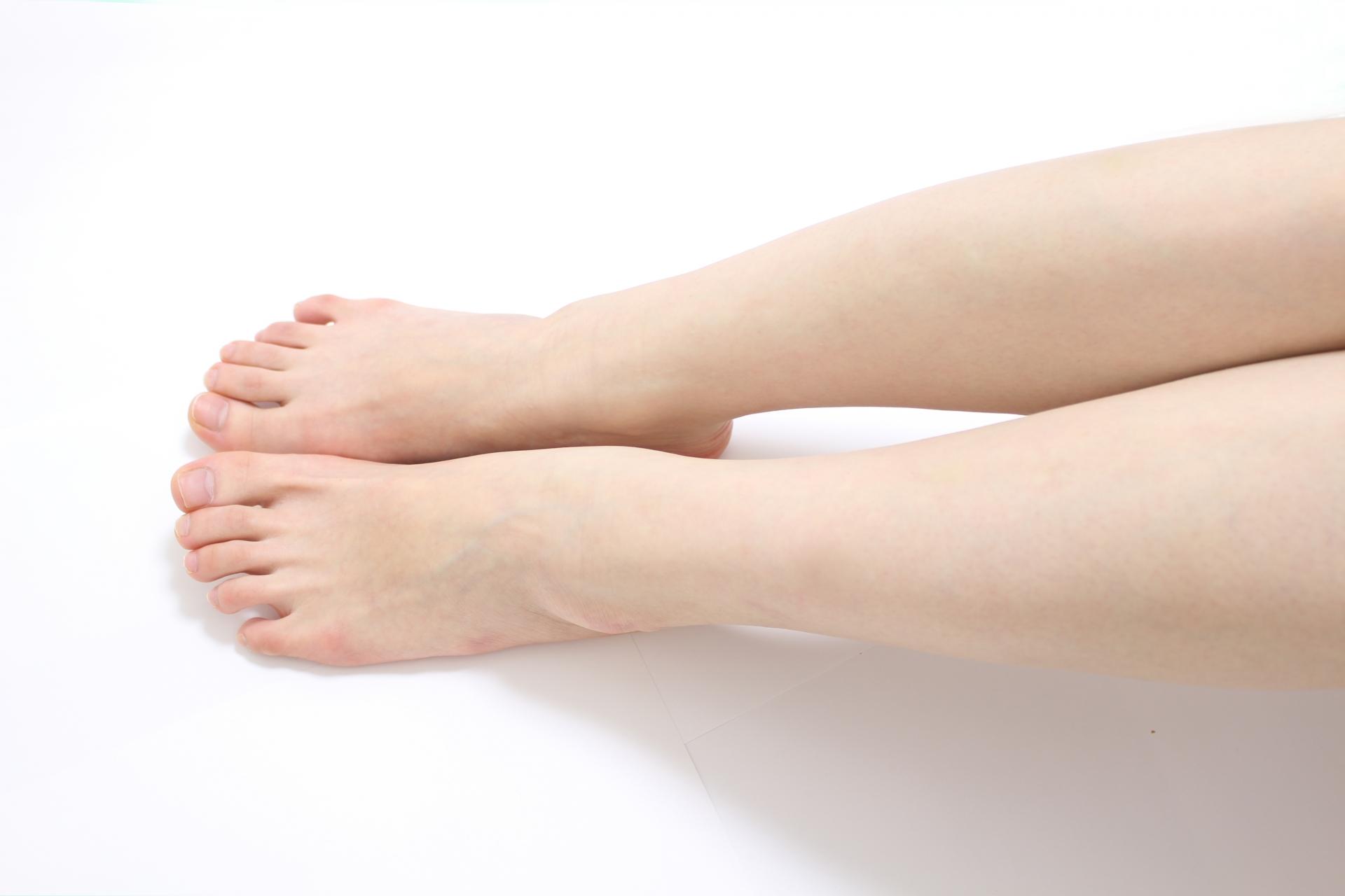 乾燥性湿疹女性の足