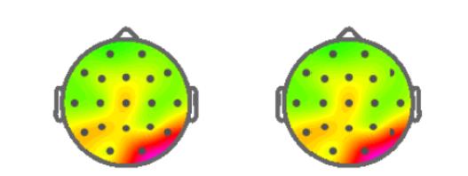 定量的脳波検査QEEG結果
