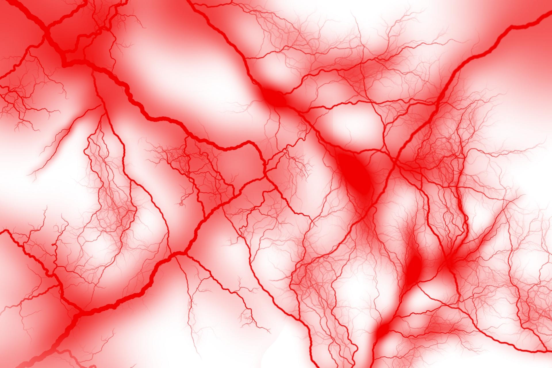 一過性脳虚血発作 イメージ